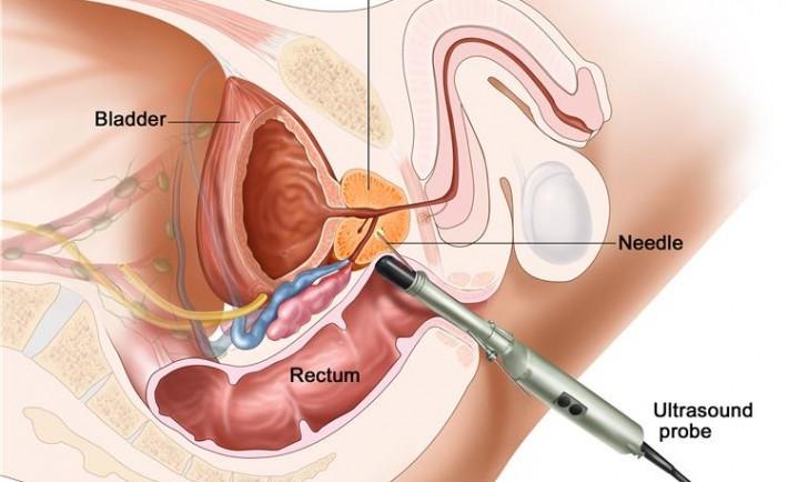 Удаление простаты через мочевой пузырь